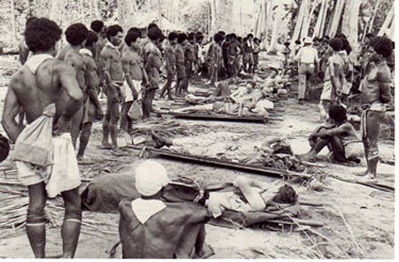American and Australian casualties, with Papuan Stretcher Bearers.
